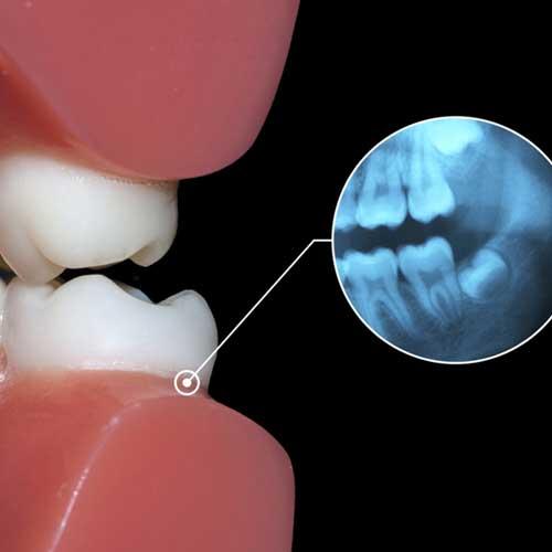 Diagnostik mit Laser und digitalem Röntgen